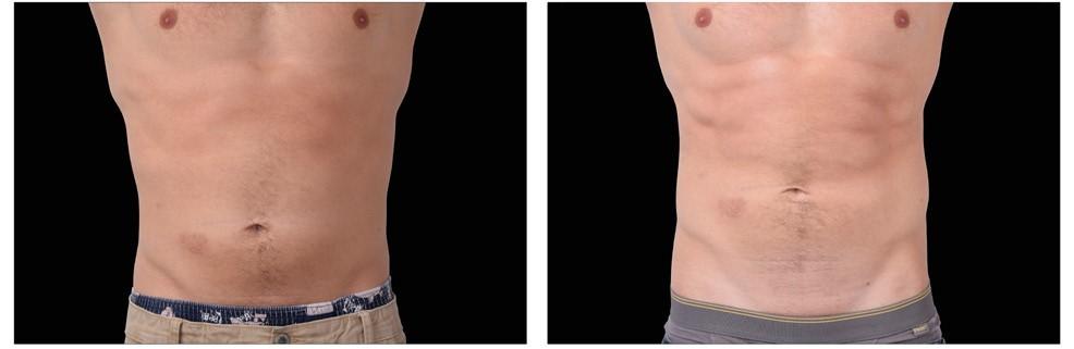 laser do modelowania brzucha
